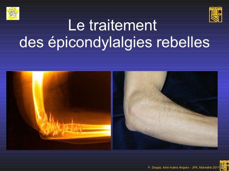 Le traitement  des épicondylalgies rebelles F. Degez, kiné mains Angers - JFK, Marseille 2011