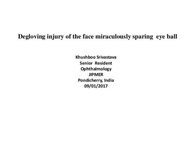Degloving injury of face miraculously sparing eye ball