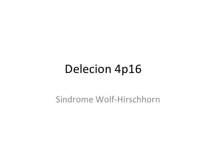 Delecion 4p16Síndrome Wolf-Hirschhorn
