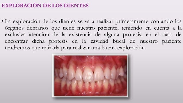 Demostración y exploración de la cavidad oral. Luis Alberto Reyes Dom…