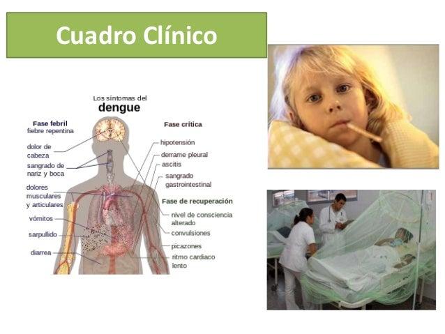 Dengue Clínico en Honduras