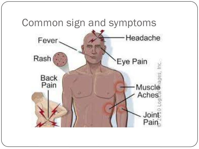 the signs symptoms and treatment of yellow fever Fever - an easy to understand guide covering causes, diagnosis, symptoms, treatment and prevention plus additional in depth medical information.