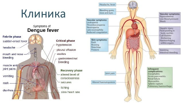 Диагностика • Турникетная проба – полож. (>10-20 петехий), ↓Ht > 20%, гипоальбубинемия • Анализ крови – тромбоцитопения <1...