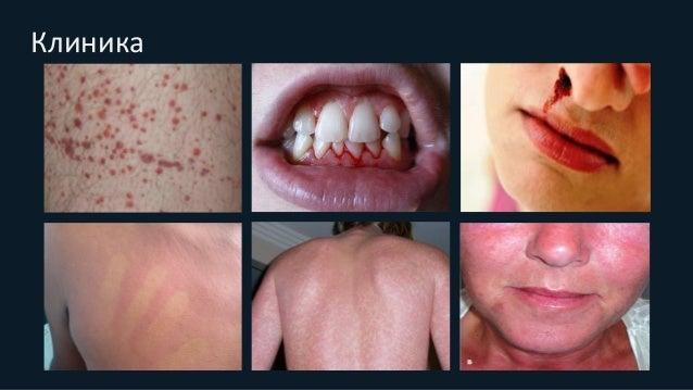 Диагностика • Dengue NS1Ag – с 1-го до 7-го дня после появления симптома • Dengue IgM – на 3-й и 4-й день • Dengue IgG – с...