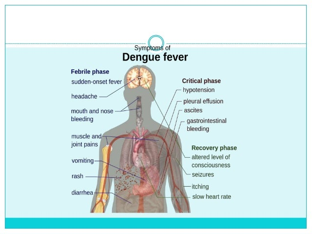 dengue fever and capillary refill time Dengue, dengue virus, dengue hemorrhagic fever, dengue fever, flavivirus, aedes (plasma leak) phase: about the time when the fever narrowing pulse pressure (systolic blood pressure minus diastolic blood pressure capillary refill (2 seconds), and decrease.