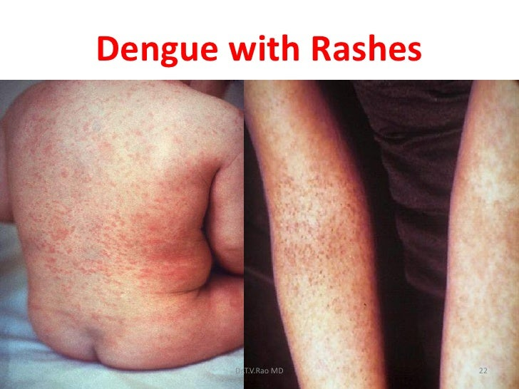 dengue fever pictures #10