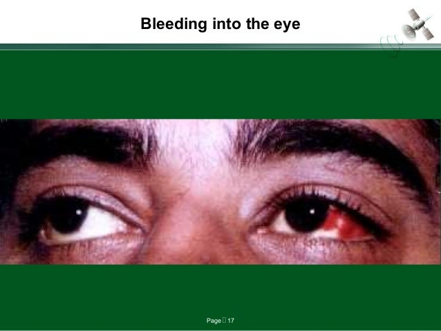 Page  17 Bleeding into the eye