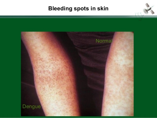 Page  19 Bleeding spots in skin Dengue Normal