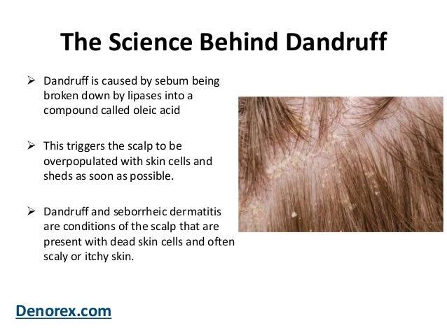 What Is Dandruff