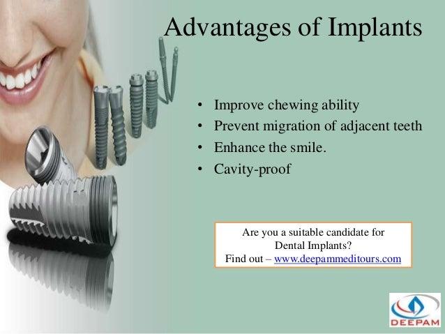 Dental Implant Quotes Magnificent Dental  Implants Veneers & Crown