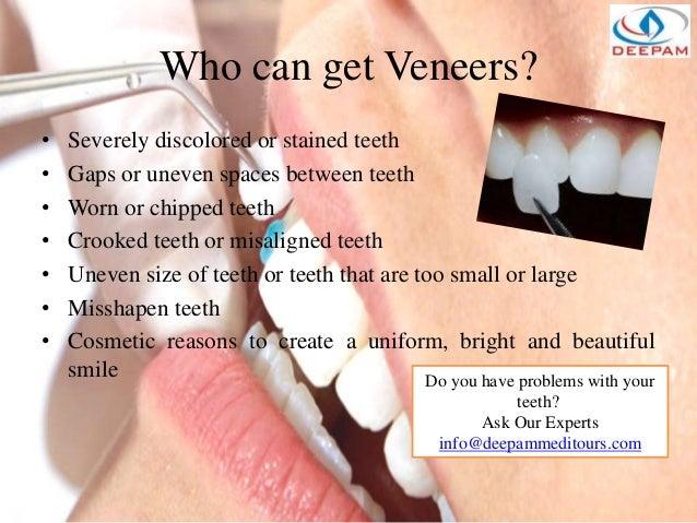 Dental - Implants Veneers & Crown