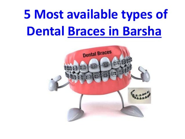 5 Most available types of Dental Braces in Barsha