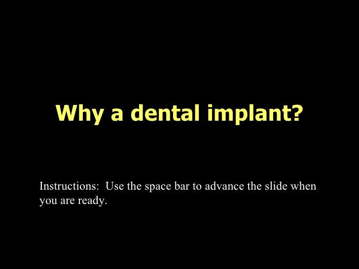Why a dental implant? Instructions:  Use the space bar to advance the slide when you are ready.