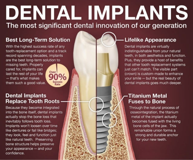 dental implants  infographic