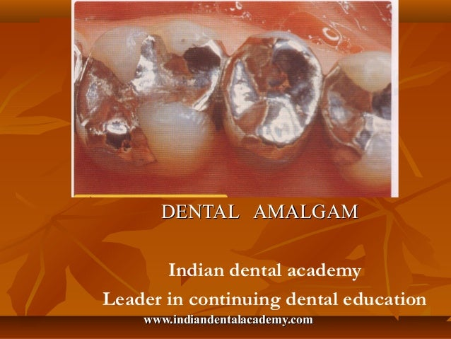 Dental amalgam      DENTAL AMALGAM       Indian dental academyLeader in continuing dental education    www.indiandentalaca...