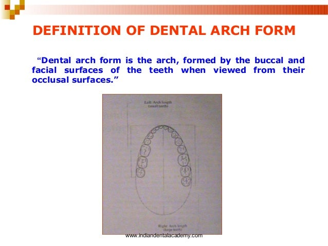 Dental arch forms /certified fixed orthodontic courses by Indian dent…