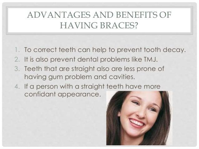 dental braces slideshare