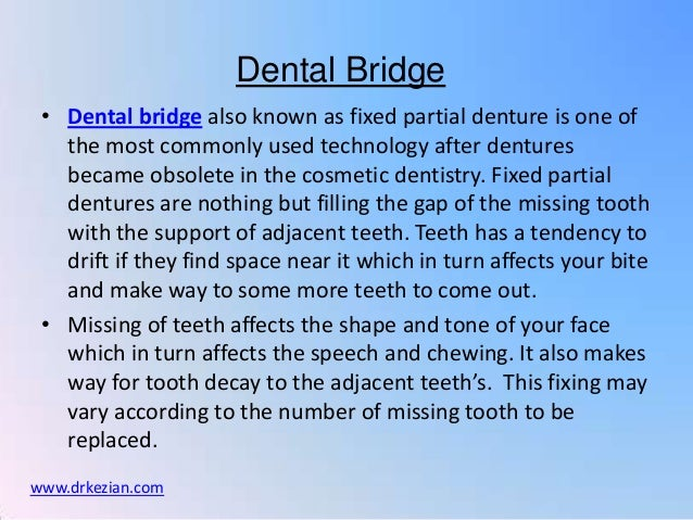 Dental Bridge • Dental bridge also known as fixed partial denture is one of   the most commonly used technology after dent...