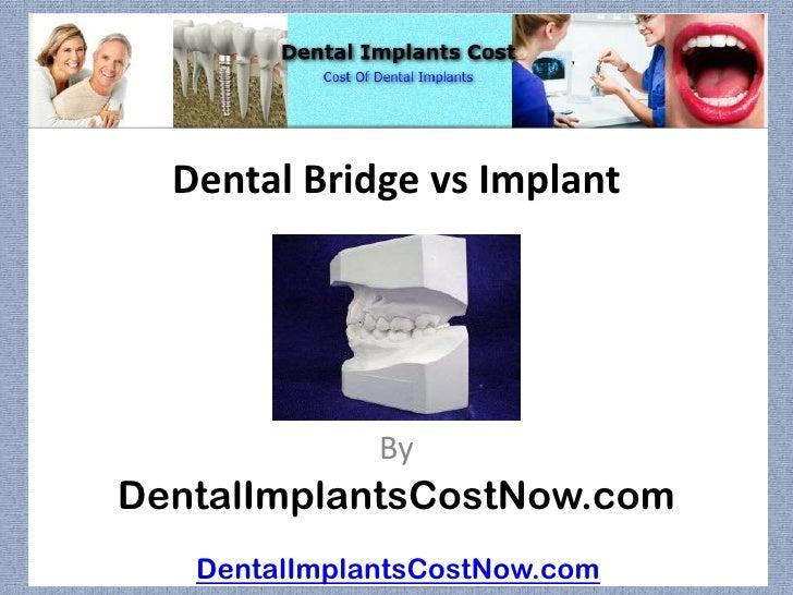 Dental Bridge vs Implant              ByDentalImplantsCostNow.com   DentalImplantsCostNow.com