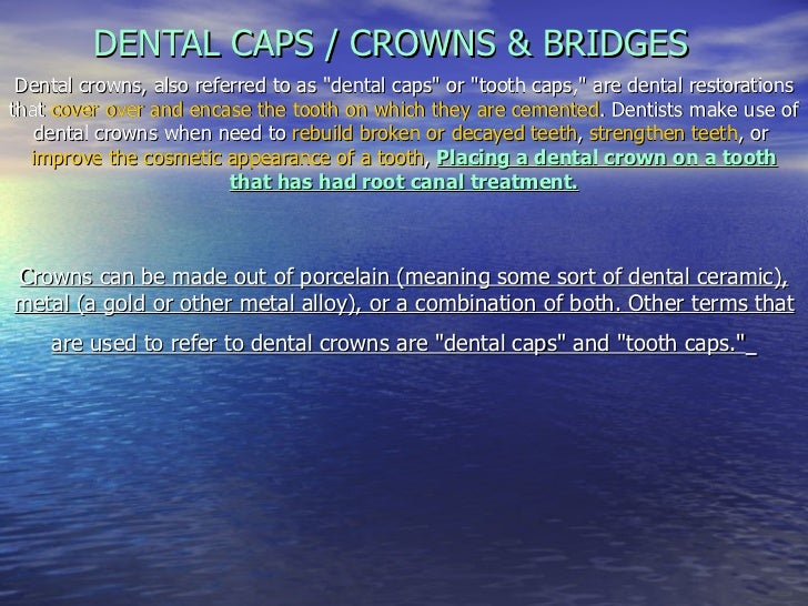 "DENTAL CAPS / CROWNS & BRIDGES Dental crowns, also referred to as ""dental caps"" or ""tooth caps,"" are d..."