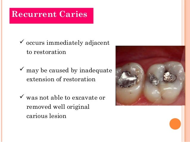 how to detect recurrent caries