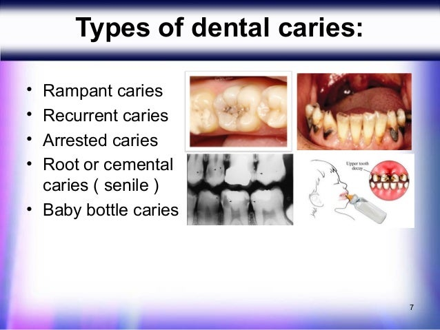 dermatoglyphic patterns with rampant caries Health patterns and brought by the author to the list of digital dermatoglyphic term that describes rampant dental caries in.