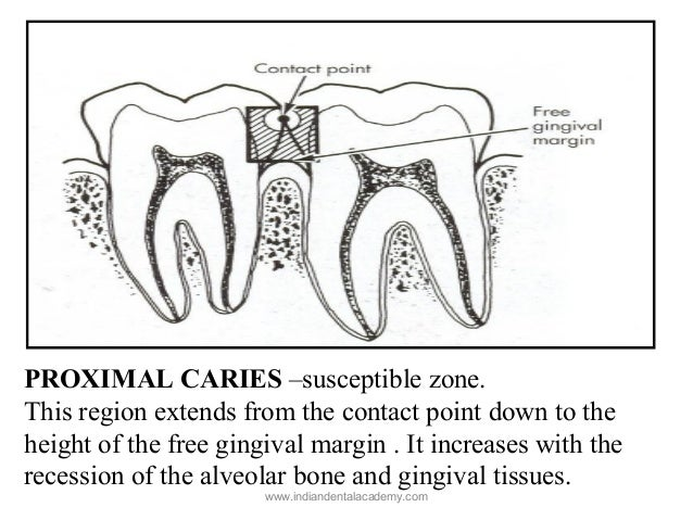 Dental caries 3/certified fixed orthodontic courses by