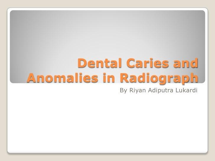 Dental Caries andAnomalies in Radiograph            By Riyan Adiputra Lukardi