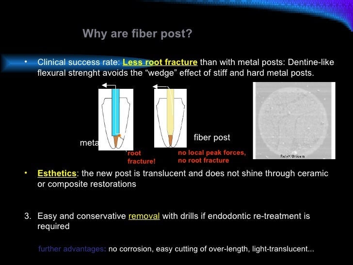 Why are fiber post? <ul><li>Clinical success rate:  Less root fracture  than with metal posts:   Dentine-like flexural str...