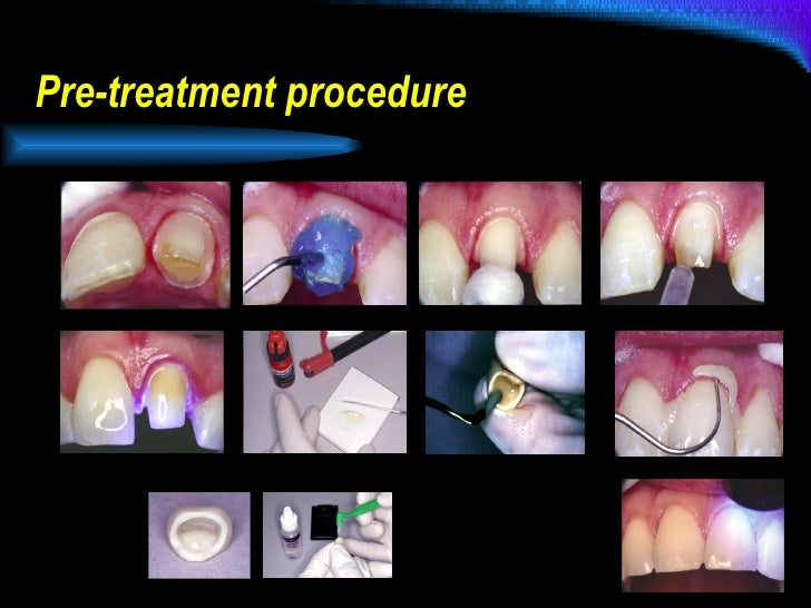 Pre-treatment procedure