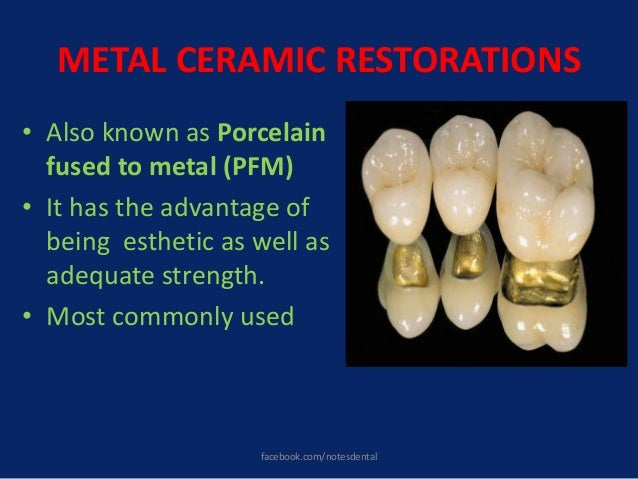 METAL CERAMIC RESTORATIONS • Also known as Porcelain fused to metal (PFM) • It has the advantage of being esthetic as well...