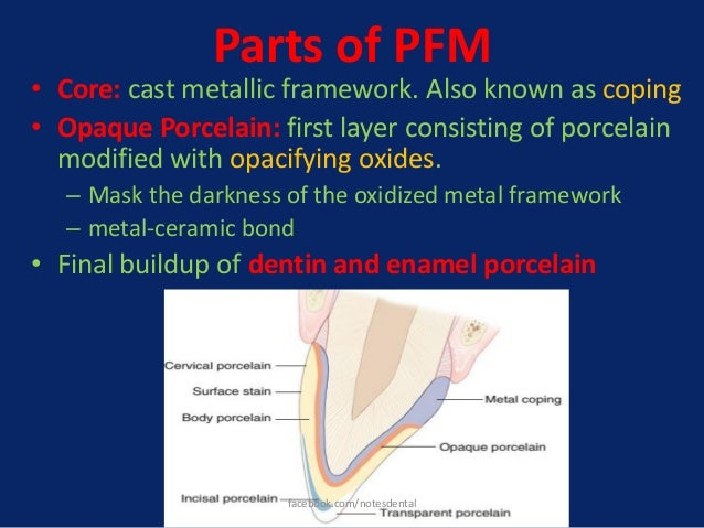 Parts of PFM • Core: cast metallic framework. Also known as coping • Opaque Porcelain: first layer consisting of porcelain...