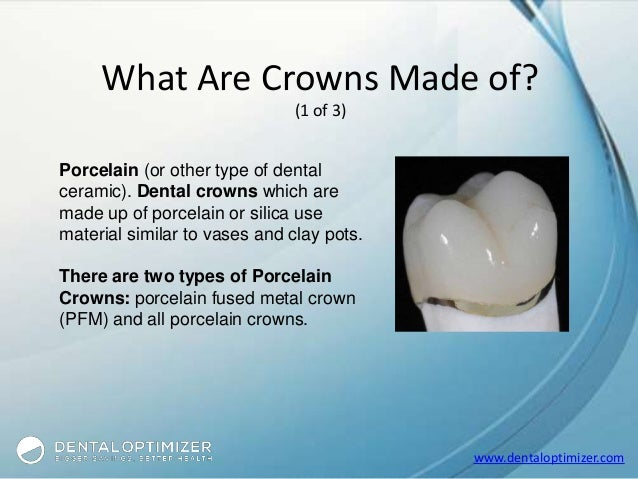 everything you need to know about dental crowns. Black Bedroom Furniture Sets. Home Design Ideas