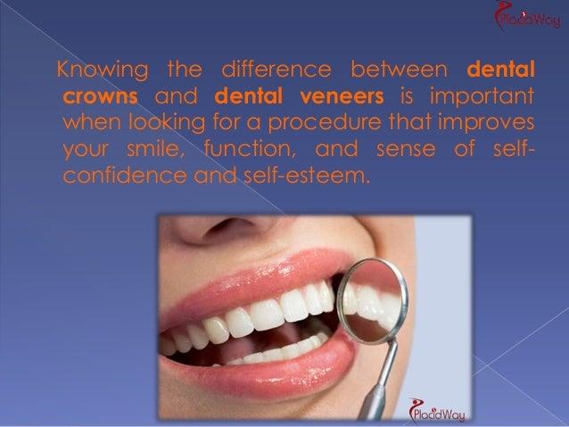 2 A Dental Crown Defines Cap