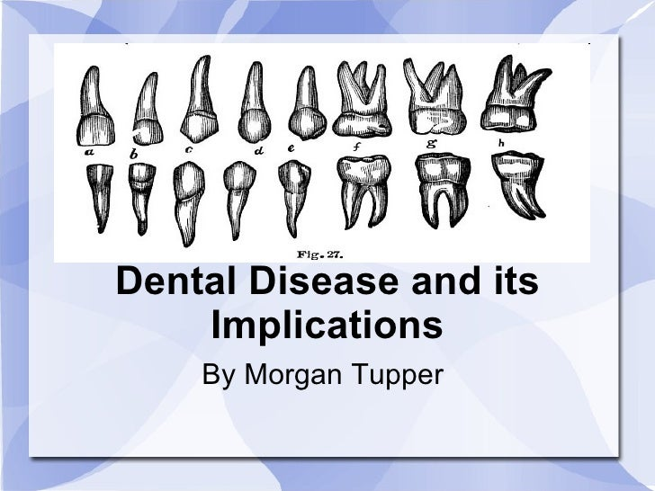 <ul>Dental Disease and its Implications </ul><ul>By Morgan Tupper </ul>