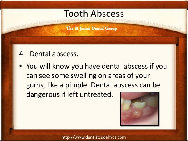 http://www.dentistcudahyca.com Tooth Abscess 4. Dental abscess. • You will know you have dental abscess if you can see som...