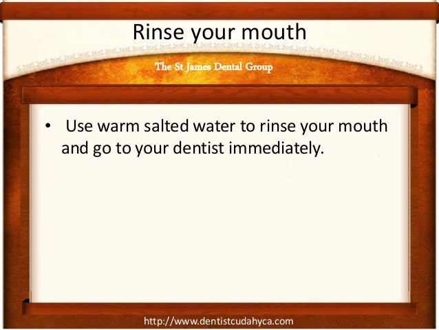 http://www.dentistcudahyca.com Rinse your mouth • Use warm salted water to rinse your mouth and go to your dentist immedia...