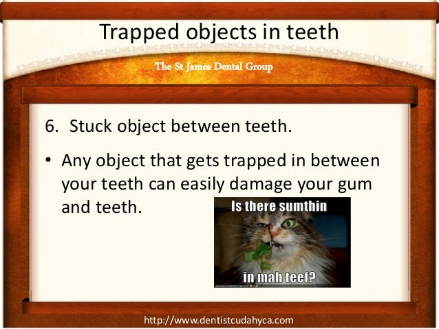 http://www.dentistcudahyca.com Trapped objects in teeth 6. Stuck object between teeth. • Any object that gets trapped in b...