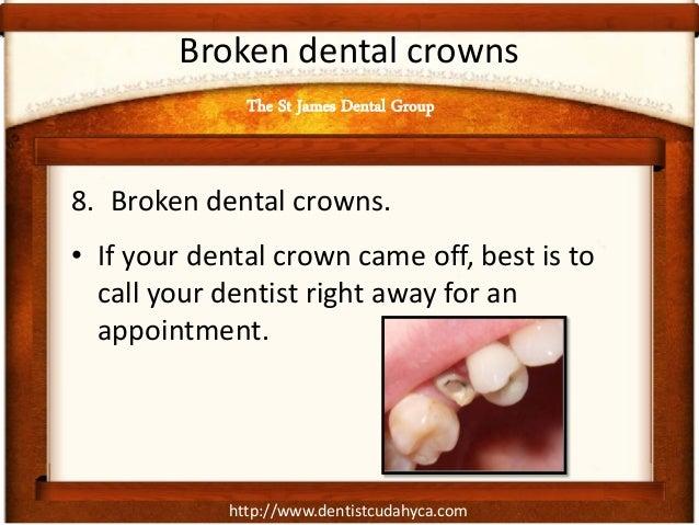 http://www.dentistcudahyca.com Broken dental crowns 8. Broken dental crowns. • If your dental crown came off, best is to c...