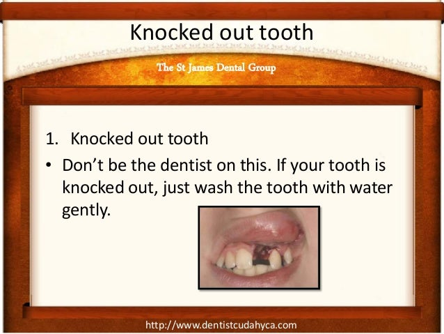 http://www.dentistcudahyca.com Knocked out tooth 1. Knocked out tooth • Don't be the dentist on this. If your tooth is kno...