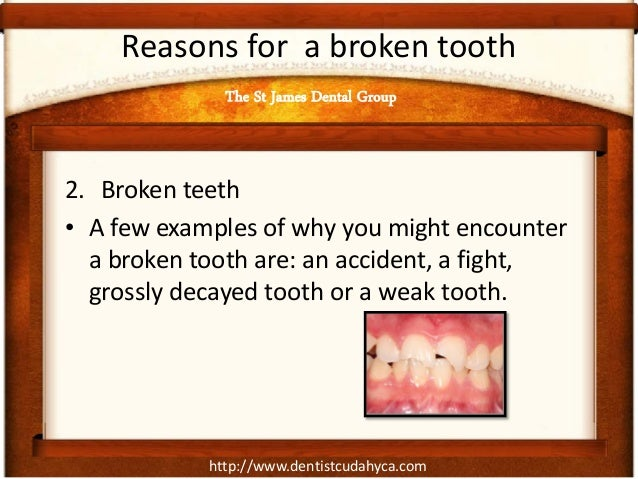 http://www.dentistcudahyca.com Reasons for a broken tooth 2. Broken teeth • A few examples of why you might encounter a br...