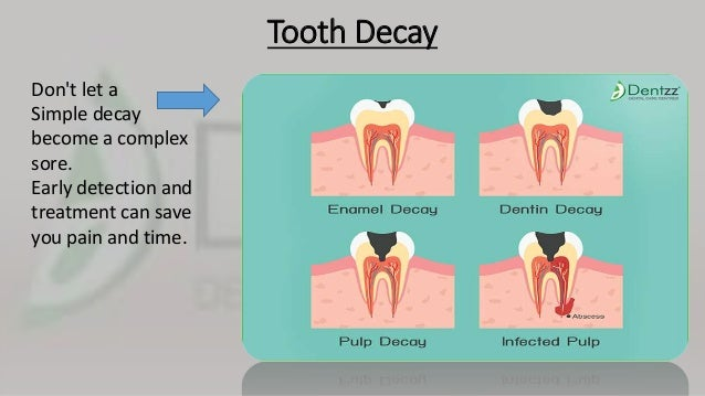 Dental facts and tips by Dentzz