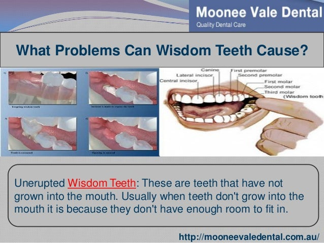 essay on wisdom teeth Free essay: there are a number of different kinds of dental implants that are currently being used to support prosthetic teeth one of the emerging forms.
