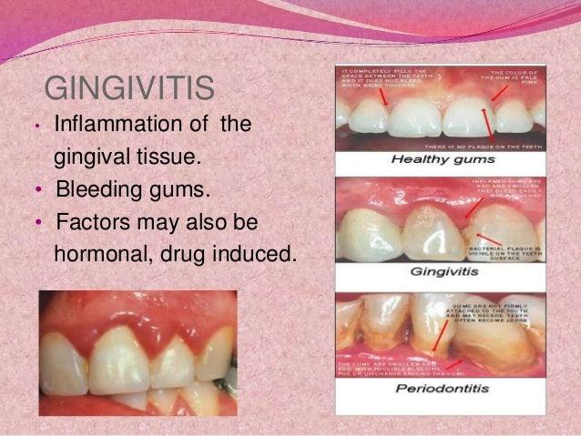 Dental hygiene and oral care