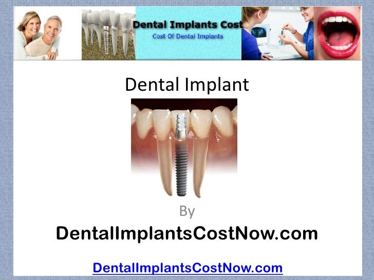 Dental Implant              ByDentalImplantsCostNow.com   DentalImplantsCostNow.com