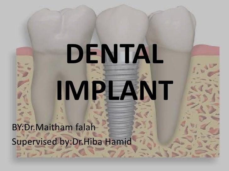 DENTAL         IMPLANTBY:Dr.Maitham falahSupervised by:Dr.Hiba Hamid