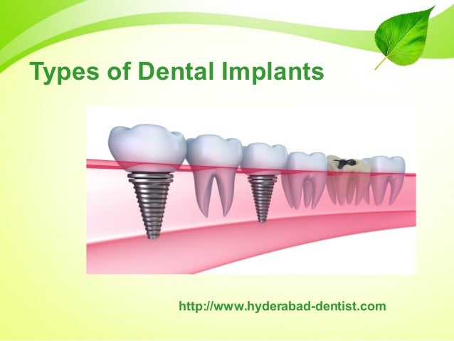 Affordable Dental implants in Hyderabad | Cost of Dental ...
