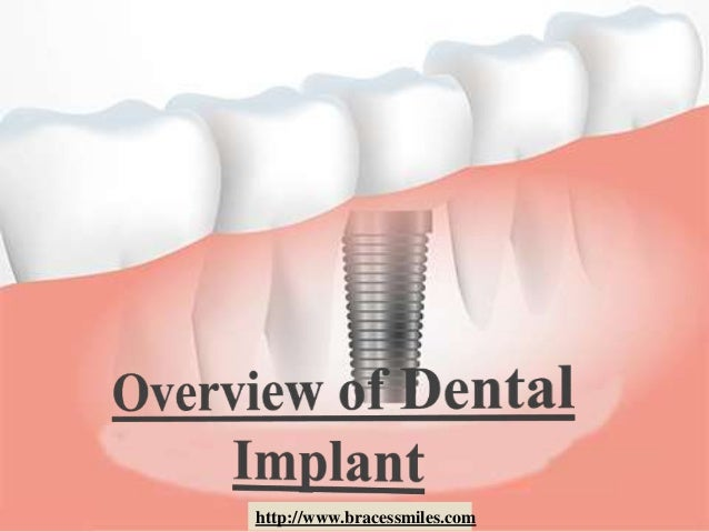 overview of dental implant by braces  u0026 smiles orthodontic