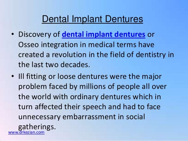 Dental Implant Dentures • Discovery of dental implant dentures or   Osseo integration in medical terms have   created a re...