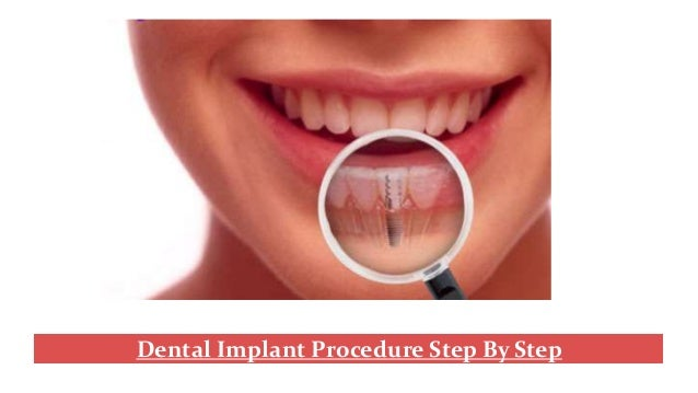 Dental implant procedure step by step